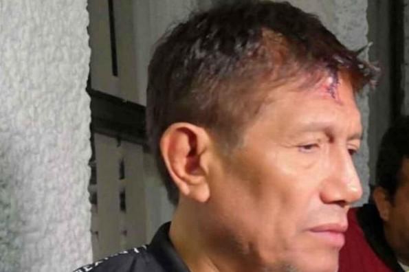 Juan Osorio sufre asalto en su propia casa #VIDEO
