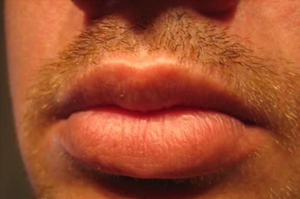 Revela estudio que uno de cada nueve hombres tiene VPH en la boca