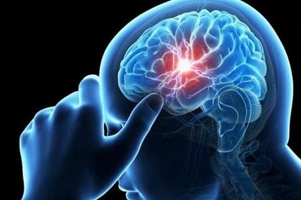 ¿Qué es el Aneurisma Cerebral? Checa síntomas