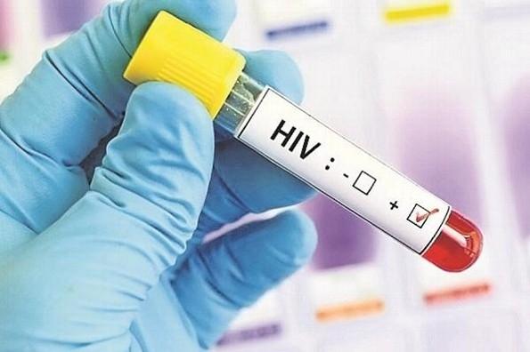 Proyecto Mosaico en la última fase de vacuna contra el VIH/SIDA